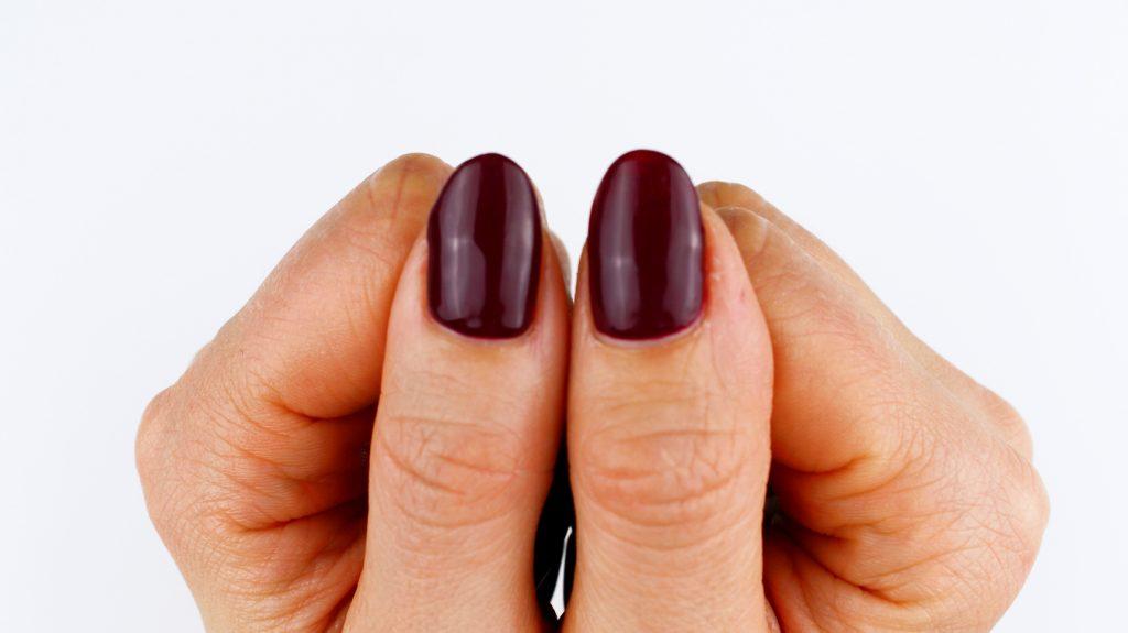 Eingerissener Fingernagel gerettet
